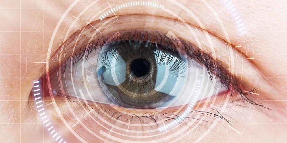 Cataracts_web